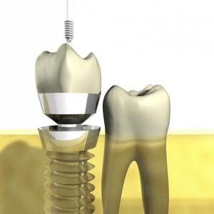 Ortodoncia, reconstrucciones, rehabilitaciones gessal